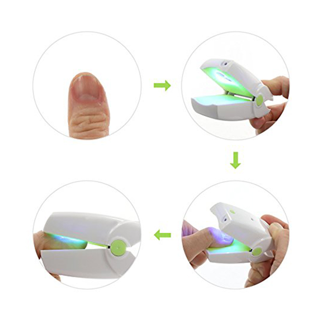 905nm-Home-Use-Toe-Nail-Fungus-Laser-Device-low-level-cold-Laser-Therapy-Device-LLLT-Physiotherapy