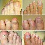 Грибок ногтя на ноге лечение – Грибок ногтей на ногах — чем лечить. По какой причине появляется грибок ногтей на ногах и какие средства эффективны в домашних условиях. — Женское мнение