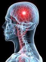 Мозговое кровообращение лечение народными средствами – Народные средства для улучшения мозгового кровообращения