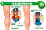 От вен на ногах народные средства – Лечение варикоза народными средствами: эффективные рецепты