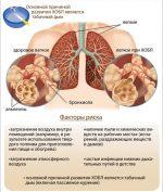 Хроническая болезнь легких хобл – Хроническая обструктивная болезнь лёгких — Википедия