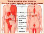 Что может болеть в левом боку под ребрами спереди – Болит левый бок под ребрами сбоку, что это может быть