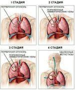 Последняя стадия рака легких – Стадии рака лёгких — 1,2,3, 4 стадии, симптомы (признаки), прогноз, лечение