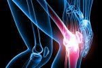 Как выявить артрит – Как диагностировать артрит — Суставы