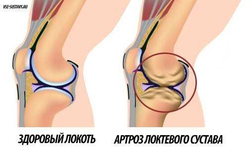 Артроз локтевого сустава симптомы и лечение упражнения в домашних условиях
