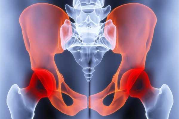 Аваскулярный некроз головки бедренной кости
