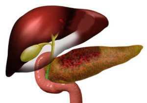 Болит правый бок после еды причина