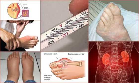 Лечение пяточного бурсита отзывы