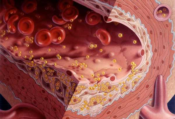Диета Холестериновые Бляшки. Диета при холестериновых бляшках