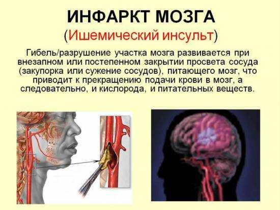 Инфаркт головного мозга – что это такое? Ишемический, лакунарный, обширный инфаркт головного мозга – причины, симптомы, лечение и последствия