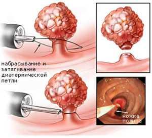 Удаление полипа уретры - цена, операция по удалению полипа уретры в центре хирургии «СМ-Клиника»