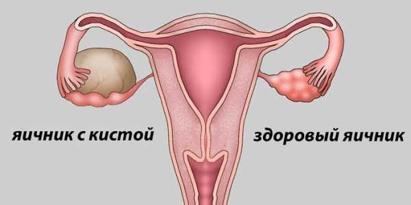 Может ли киста яичника рассосаться сама