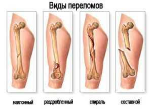 Причины симптомы виды и лечение перелома ноги