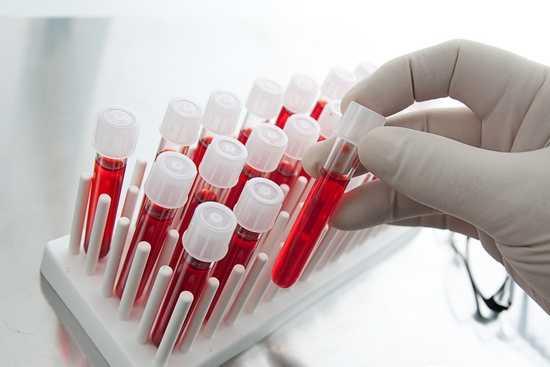 Анализы крови на ревматизм расшифровка показателей и как сдавать