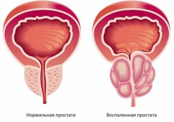 Методы лечения простатита народными средствами клиники по лечению простатита в тюмени