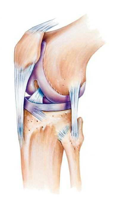 Артрит 1 степени коленного сустава диета