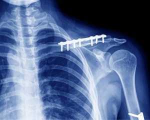 Перелом ключицы со смещением операция с пластиной период восстановления