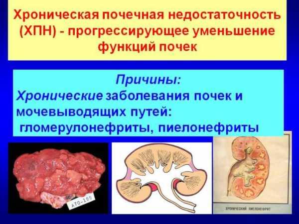 Почечная недостаточность симптомы у мужчин диета