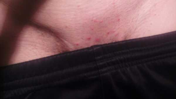 Раздражение в паху после бритья у мужчин – Раздражение после бритья в паху у мужчин: причины и профилактика