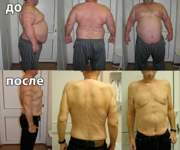 Операции на желудке для похудения новосибирск