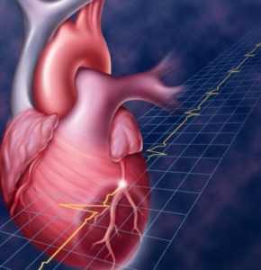 Сколько можно прожить после инфаркта — Сердце